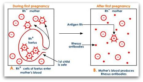 rh-incompatibility-during-first-pregnancy